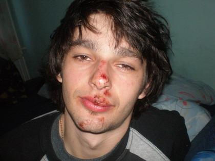 Mateusz Kowalski after Face Lifting